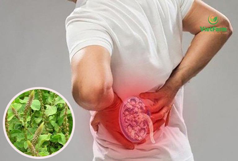Cây cỏ xước có công dụng tán sỏi, tiêu sỏi, kích thích tiểu tiện