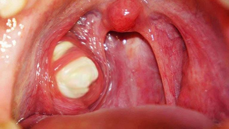 Bã đậu amidan là một dạng bệnh lý khá nguy hiểm với khả năng biến chứng cao