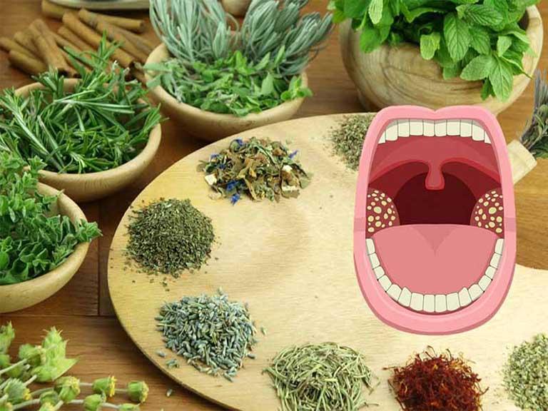 Chữa viêm amidan bằng thảo dược chỉ phù hợp với người mắc bệnh nhẹ