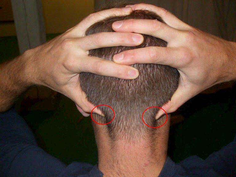 Cách ấn huyệt Thính phong chữa viêm tai giữa