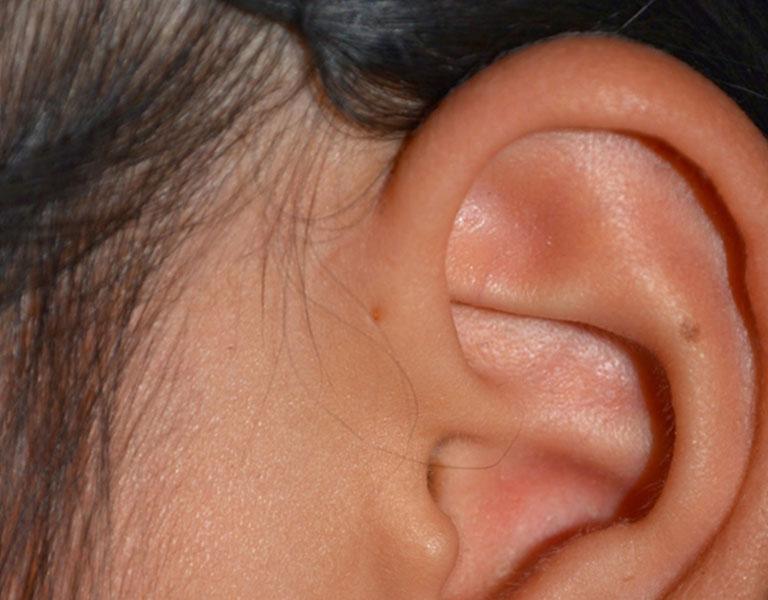 Dấu hiệu nhận biết căn bệnh là lỗ nhỏ bằng đầu tăm ở cạnh vành tai