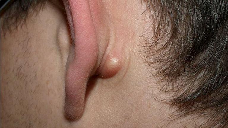 U bã đậu ở tai là dạng u lành tính thường gặp ở nhiều đối tượng khác nhau