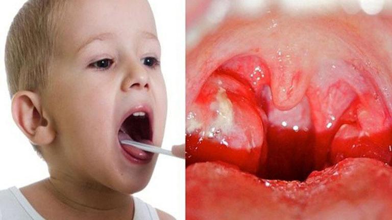 Phụ huynh có thể thấy amidan của trẻ xuất hiện đốm trắng khi bị viêm