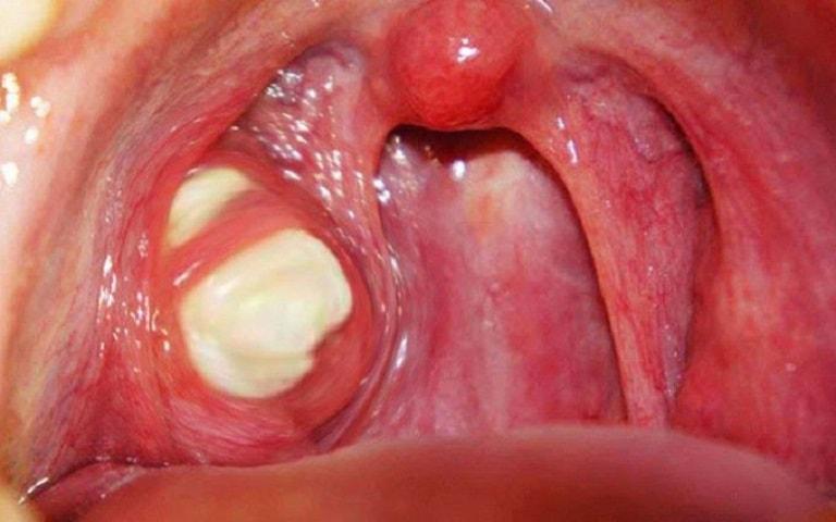 Viêm amidan có mủ là bệnh lý thường gặp ở nhiều người