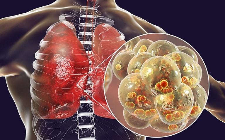 Viêm phổi là biến chứng nghiêm trọng của viêm amidan hốc mủ