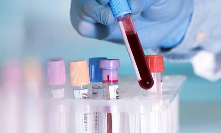 Xét nghiệm máu được bác sĩ chỉ định sau đó để đánh giá mức độ viêm