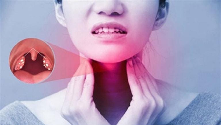 Viêm amidan mãn tính là bệnh lý nguy hiểm