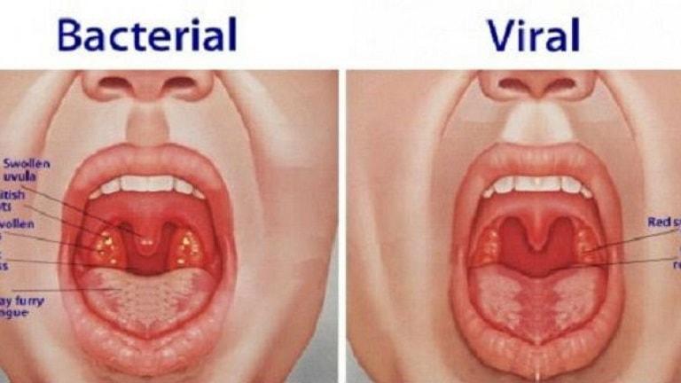 Bác sĩ kiểm tra vòm họng để xác định tổn thương