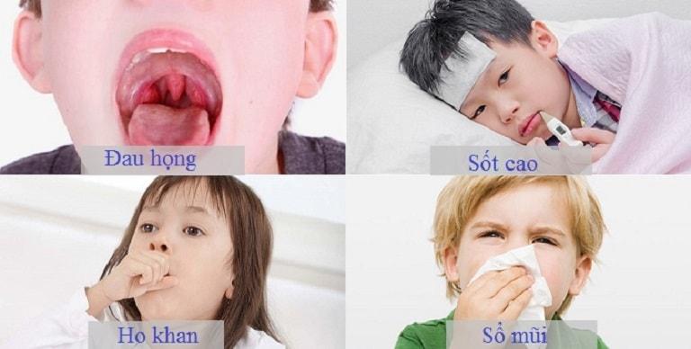 Viêm mũi họng có triệu chứng thường thấy như: Đau họng, sốt cao, ho,...
