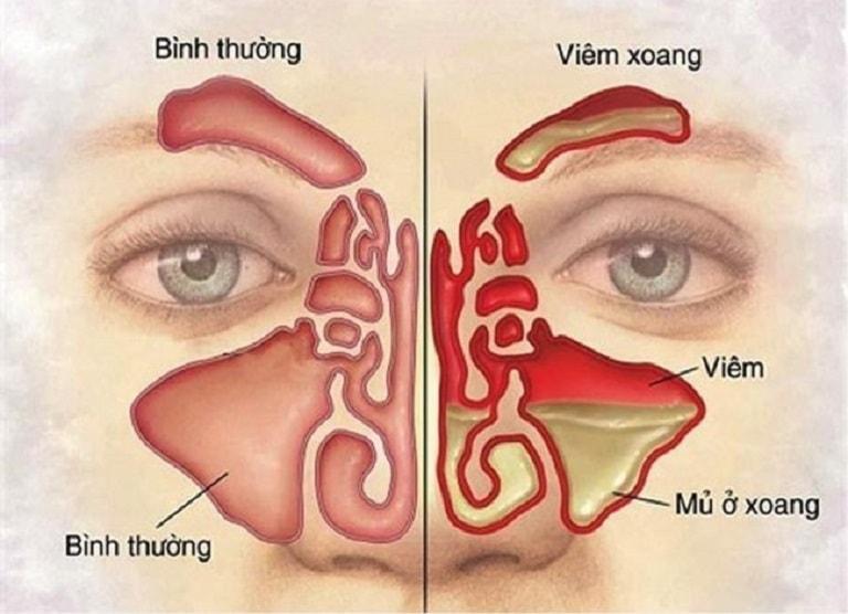 Niêm mạc mũi sưng đỏ và xoang chứa đầy dịch là các triệu chứng của bệnh viêm mũi xoang cấp