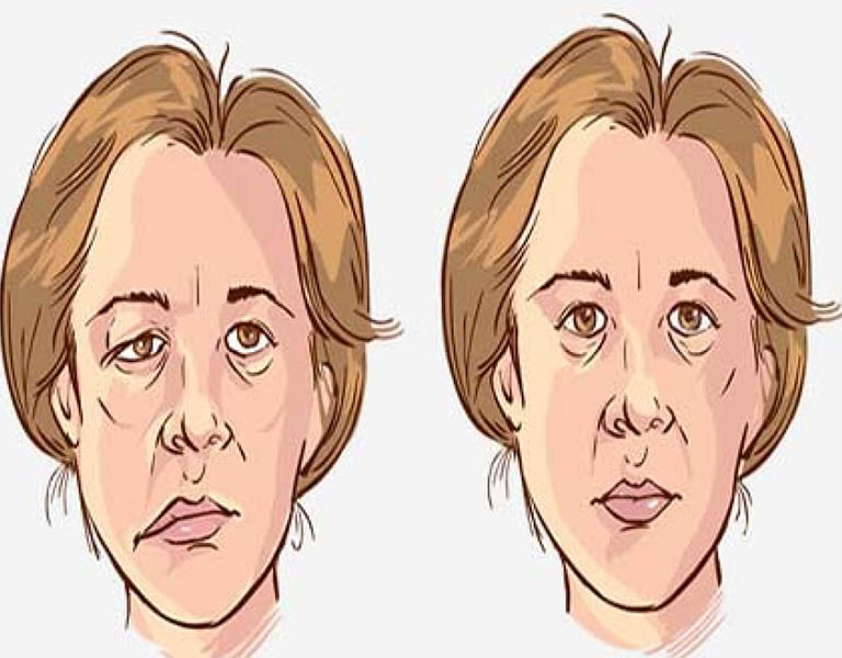 Bệnh viêm tai giữa có mủ có thể gây ra biến chứng liệt mặt