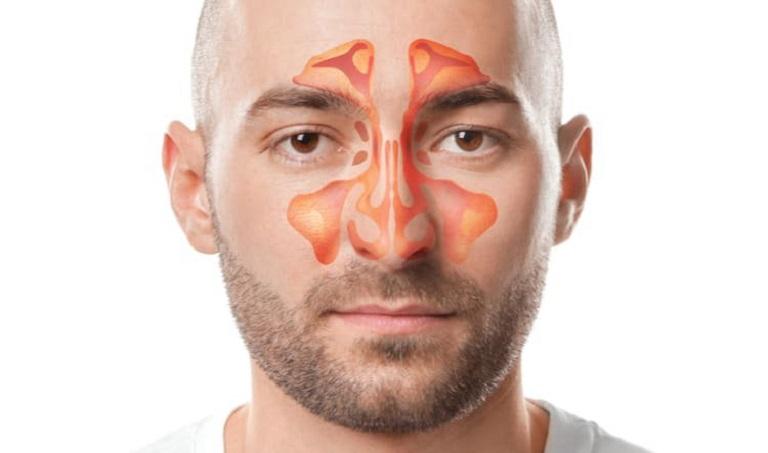 Xoang hàm gồm nhiều hốc xoang thông với mũi, miệng nên dễ bị nhiễm khuẩn