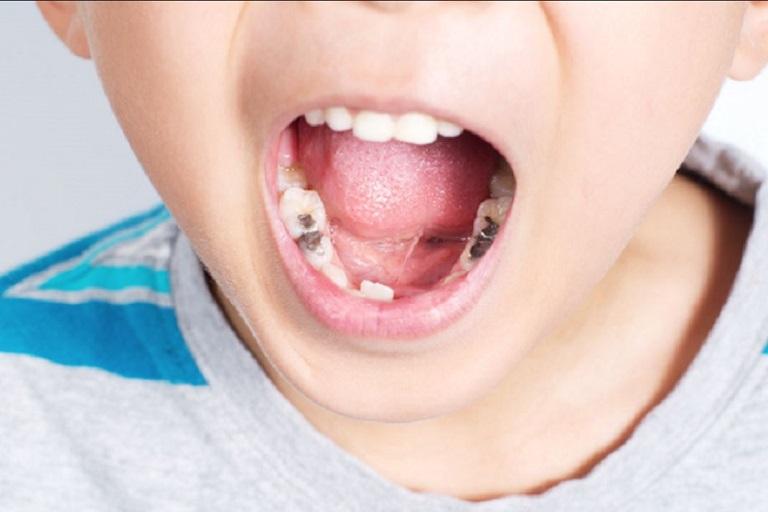 Viêm xoang hàm có liên quan đến răng thường khá phổ biến