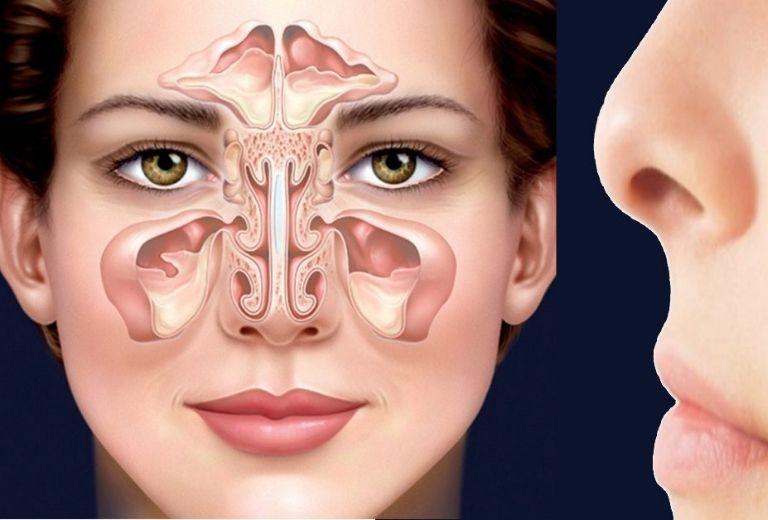 Bệnh ảy ra trong trường hợp lớp niêm mạc hô hấp lót trong xoang cạnh mũi đã bị viêm