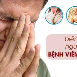 Biến chứng viêm xoang có thể xảy ra ở mắt, não, xương, đường hô hấp