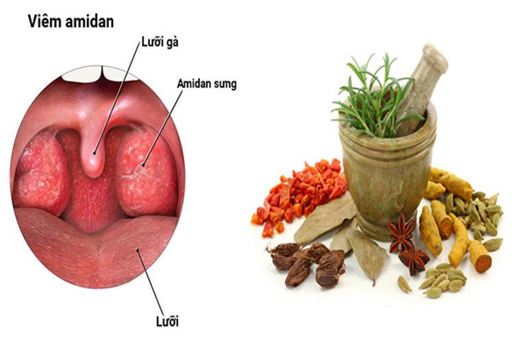 Chữa viêm amidan giai đoạn cấp tính thường nhanh chóng và đơn giản