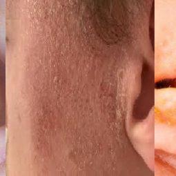 Một số triệu chứng điển hình của bệnh chàm tai