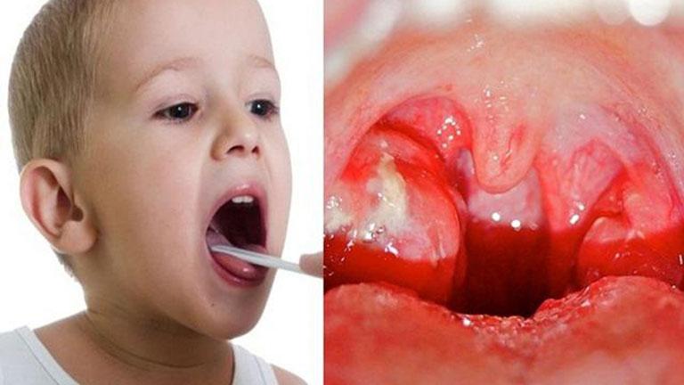 Trẻ bị viêm amidan thường khó chịu sinh ra tâm lý biếng ăn