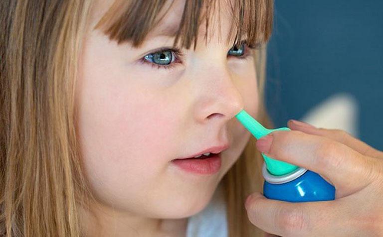 Trẻ em cũng có thể áp dụng được cách rửa mũi trị viêm xoang này