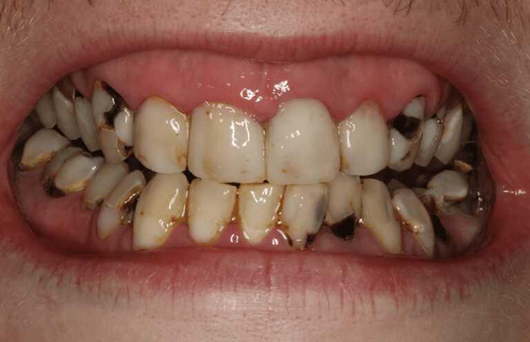 Sâu răng là một trong những nguyên nhân chính gây bệnh viêm amidan có mủ
