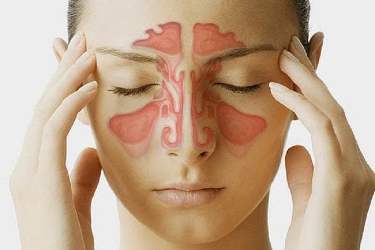 Viêm đa xoang mãn tính là bệnh lý tương đối nguy hiểm