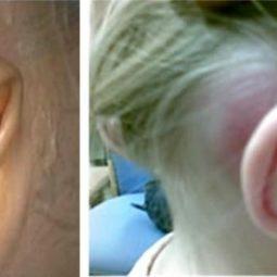 Viêm tai xương chũm có thể xảy ra ở cả người lớn và trẻ nhỏ