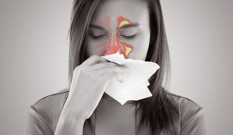 Những người có sức đề kháng yếu dễ bị viêm xoang cấp hơn bình thường