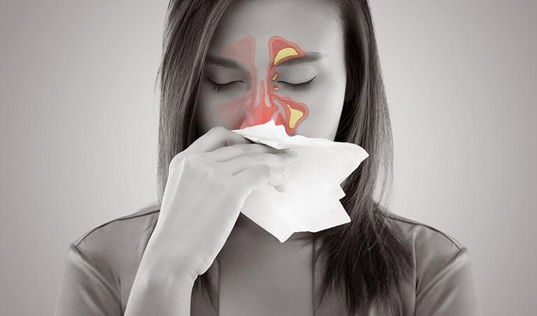 Viêm xoang cấp mủ là tình trạng bệnh nhiều người gặp hiện nay