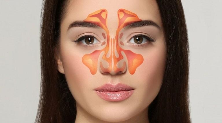 Viêm xoang bướm là bệnh lý nhiều người thường gặp phải