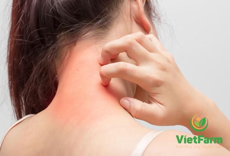 Nếu thấy các triệu chứng bất thường cần ngưng sử dụng