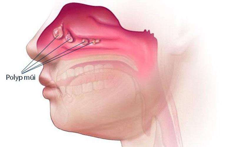 Polyp mũi xoang là một dạng u lành rất hay gặp