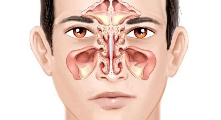 Tìm hiểu về bệnh viêm xoang mãn tính