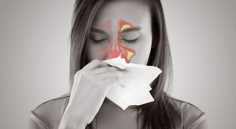 Những nguyên nhân có thể dẫn tới viêm xoang mãn tính