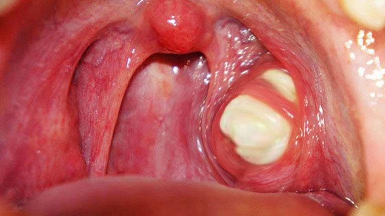 Viêm họng có đờm gây nhiều khó chịu cho người bệnh