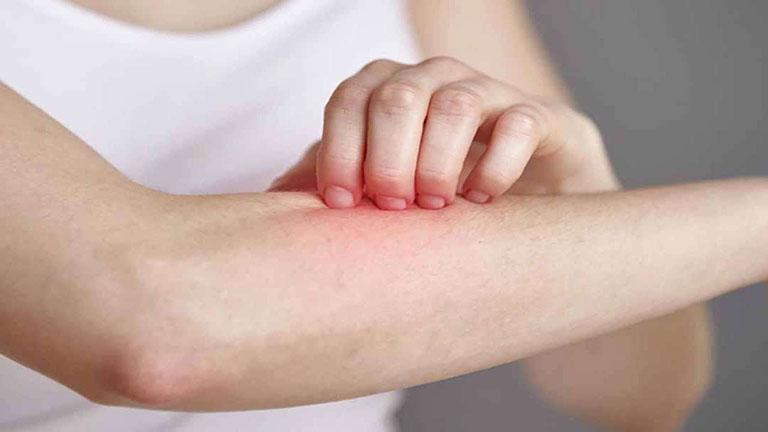 Những người có cơ địa dị ứng thường có nguy cơ mắc bệnh cao
