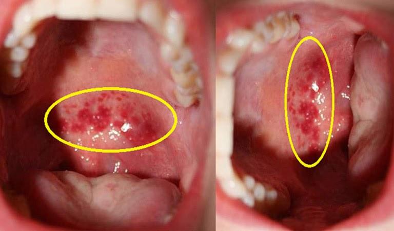 Triệu chứng của bệnh viêm họng ở trẻ
