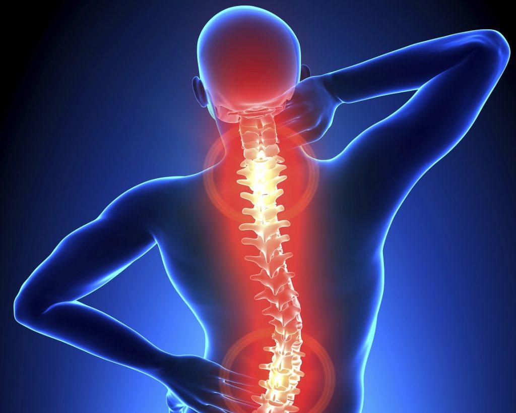 Thoái hóa cột sống xảy ra khi sụn khớp bị biến đổi hình thái, đĩa đệm bị bào mòn