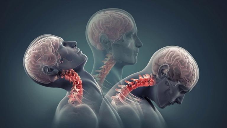 Thoái hóa đốt sống cổ khiến người bệnh đau nhức quanh vùng cổ, gáy