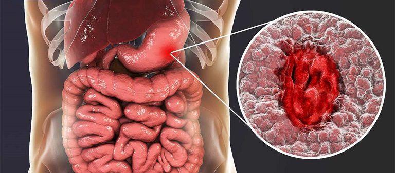 Ung thư dạ dày hay còn gọi là ung thư bao tử