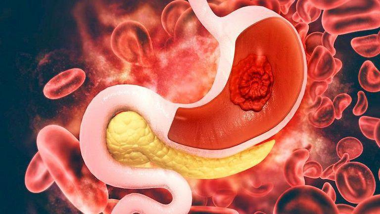 Có nhiều nguyên nhân dẫn đến ung thư bao tử