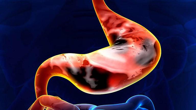 Nhiễm khuẩn HP có thể gây ung thư dạ dày